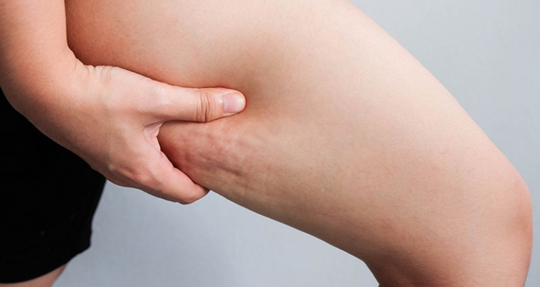 Things That May Be Causing Your Cellulite