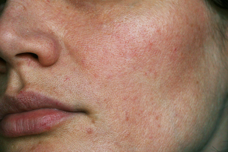 What causes uneven skin texture?