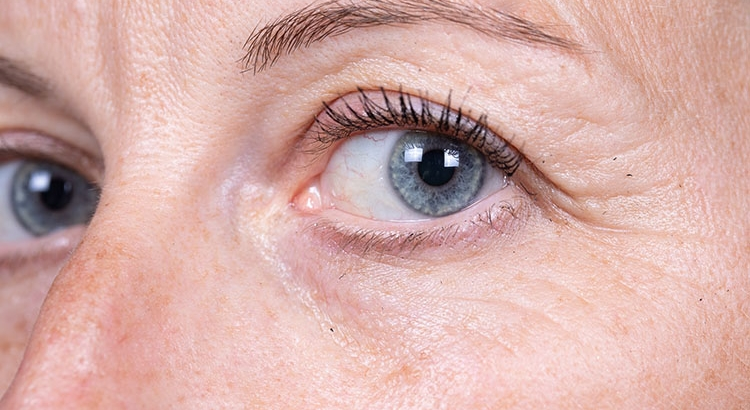What is the difference between wrinkles and rhytids?