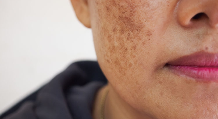 Causes of Melasma on the Face