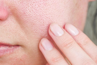 Enlarged Pores: Treatments in Marlton