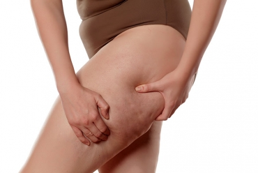 What exactly is cellulite?